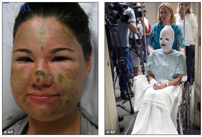 حسادت عامل اسیدپاشی روی دختر امریکایی!