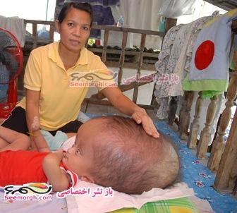 عکس هایی از بیماری وحشتناک یک پسربچه!!