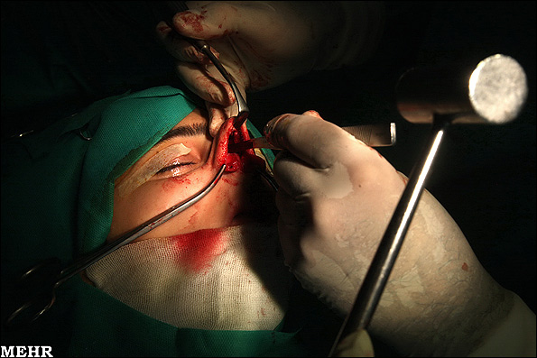 گزارش تصویری از عمل زیبایی بینی