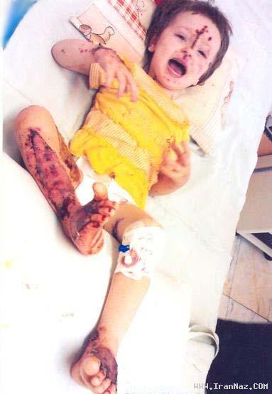 عکس های هولناک از اسید پاشی به یک مادر و فرزند