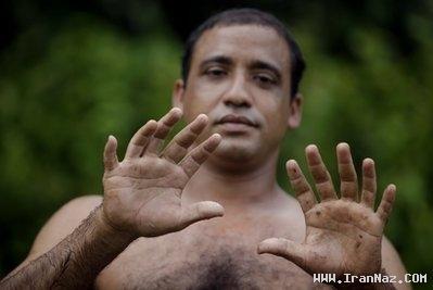 مرد 24 انگشتی و توانایی های منحصر به فرد +عکس