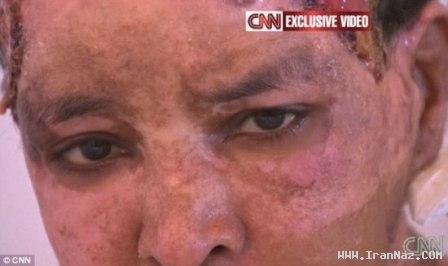 شکنجه دردناک زنی که دیگر شبیه زنها نیست +عکس
