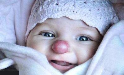 دختری که از بدو تولد شبیه دلقکها بوده !+ عکس