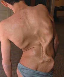 عکس هایی وحشتناک از سندرم سنگی در انسان