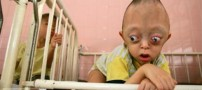 عکس هایی باور نکردنی از عجیب ترین کودکان جهان