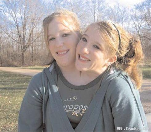 عجیب ترین خواهران آمریکا با یک بدن و دو سر +عکس