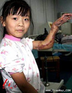 احمقانه ترین جراحی های انجام شده جهان +عکس