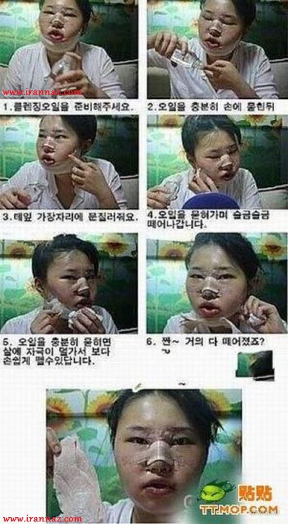 دختری که از چهره خود راضی نبود و عاقبت... +عکس