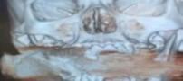 خارج کردن نارنجک منفجر نشده از صورت زنی +عکس