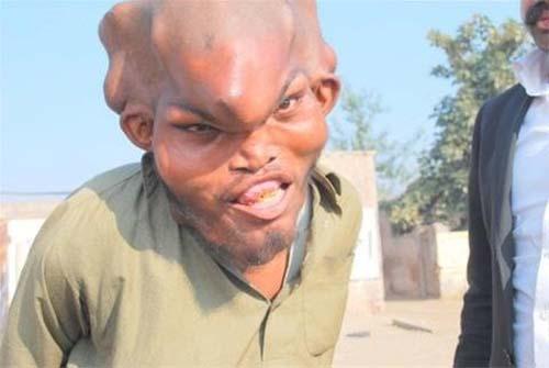 عکسهای مردی با عجیب ترین و ترسناک ترین سر دنیا