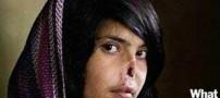 بریدن گوش و دماغ دختری به دلیل فرار از خانه +عکس