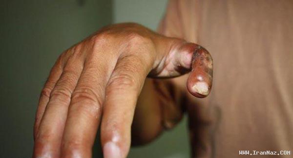 انگشت پایی که به دست یک مرد پیوند زده شد+عکس