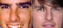 عکس هایی از قبل و بعد از عمل زیبایی بینی بازیگران
