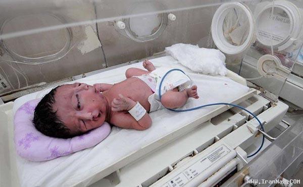 تولد نوزادی بسیار عجیب با دو صورت و چهره +عکس