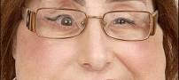 اولین خانم گیرنده پیوند صورت در جهان +تصاویر (+18)