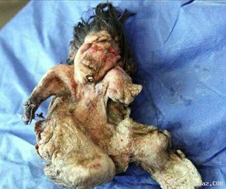خارج کردن یک جنین از بدن پسر 22 ساله!!! (تصویری)