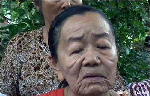دختری 26 ساله در عرض چند روز 80 ساله شد+عکس