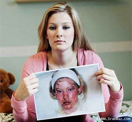 اتفاق باور نکردنی برای دختر 19 ساله و  زیبا!! +تصاویر
