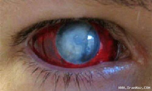 عکس هایی از لنز های بسیار عجیب شیطان پرستان ، www.irannaz.com