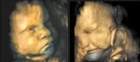 حالت خنده و گریه در صورت جنین+تصاویر بسیار دیدنی