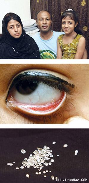 دختری با چشم هایی بسیار عجیب و غریب!! +تصاویر