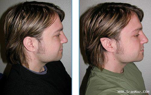 عکس های جراحی گوش برای شبیه شدن به شیطان