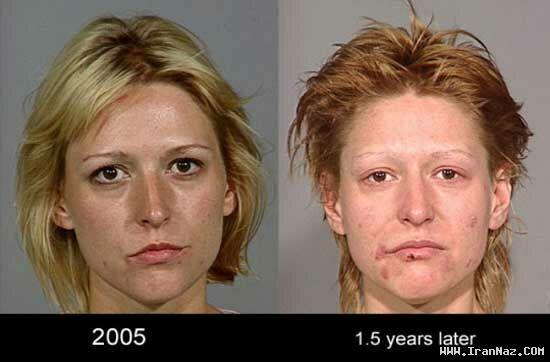 تأثیر باور نکردنی مصرف شیشه بر روی صورت +عکس