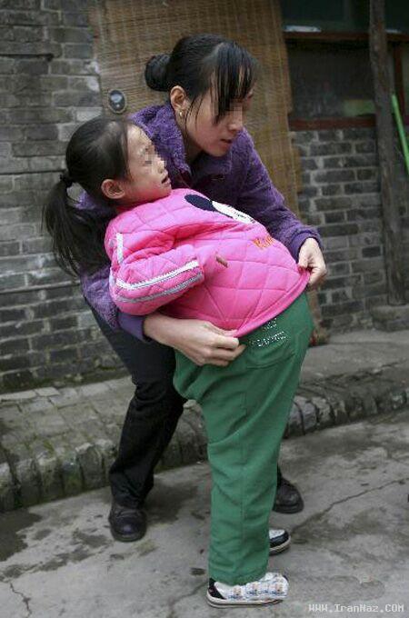 شکم دختری 1 متر باد کرد و مثل بادکنک شد +عکس
