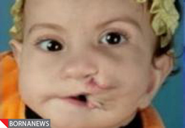 www.irannaz.com  عمل جراحی پسری که دو دهان دارد + عکس