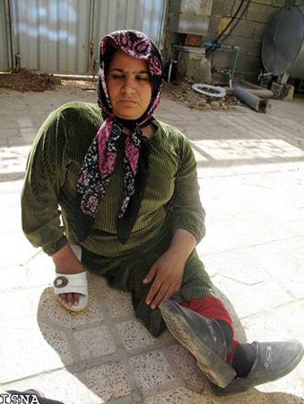 زندگی دردناک دختر معلول ایرانی + تصاویر