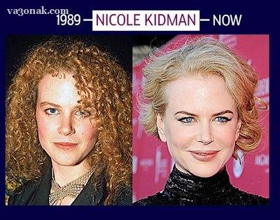 عکس های جالب از تغییر چهره 3 زن مشهور