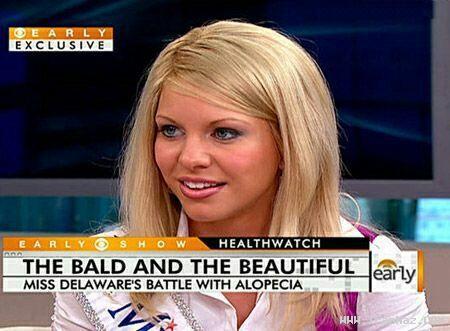عکس های دیدنی زیبا ترین دختر کچل منتخب آمریکا!!