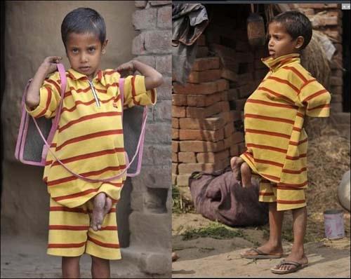 عکسهای دیدنی پسری با عجیب ترین بیماری