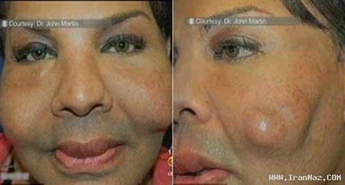 تزریق سیمان بجای ژل زیبایی به گونه یک زن! +عکس