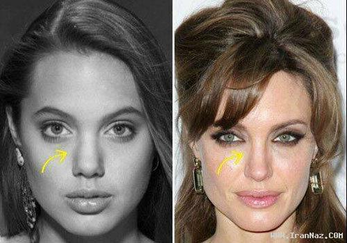 تفاوت چهره آنجلینا جولی در قبل و بعد جراحی زیبایی!