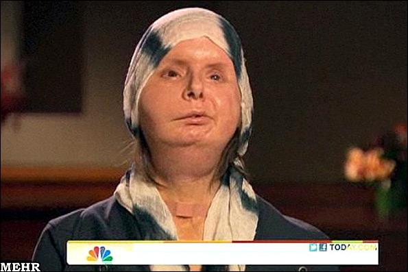 چهره دیدنی زنی 6 ماه پس از پیوند صورت + عکس
