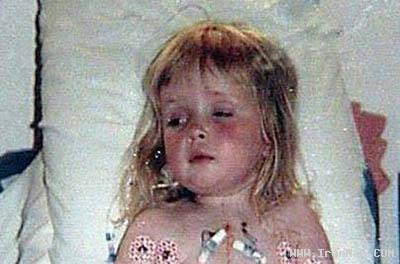 دختری 16 ساله که دو قلب در سینه داشت! +عکس