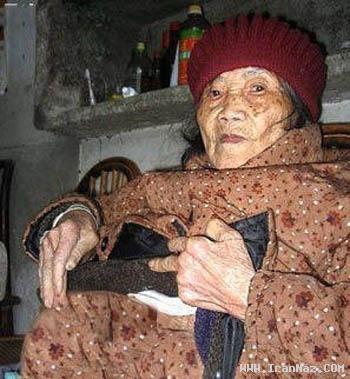 متولد شدن کودکی سنگی از پیر زنی در چین! +عکس