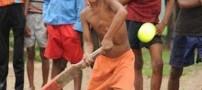 وجود دست و پای برادر دوقلو در شکم یک پسر+عکس