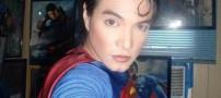 پسری که با عمل جراحی شبیه سوپرمن شد +عکس