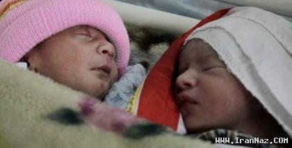 عکس های جالب نوزاد متولد شده با 2 سر و یک بدن