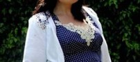 انفجار شکم زن جوان پس از جراحی ساکشن +عکس