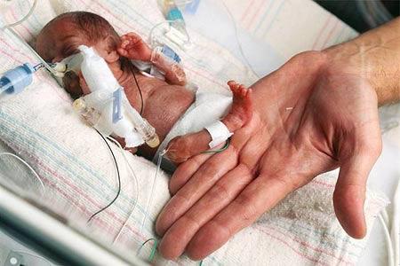 ریزترین دختر نوزاد جهان + عکس