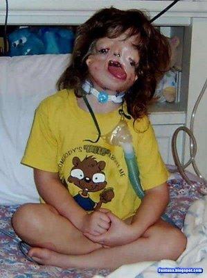 عکس هایی از زشت ترین دختر جهان
