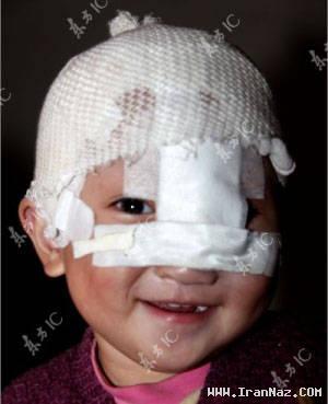 زندگی پسر بچه عجیب و شبیه پینوکیو در چین +عکس ، www.irannaz.com