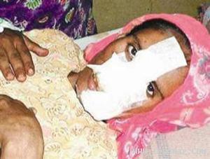 زنی خیانتکار توسط خانواده شوهر مجازات شد +عکس