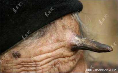 عکس هایی از زنی بسیار عجیب که شاخ در آورده !!!!