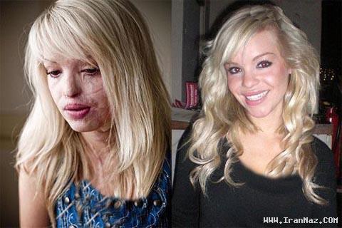 دختری 24 ساله که قربانی اسید پاشی شد! +عکس