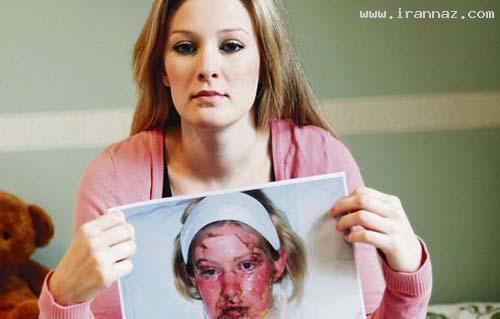 اتفاق بسیار دردناک برای دختر زیبای 19 ساله +عکس