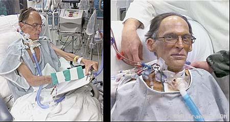 انسانی که بدون ضربان قلب زندگی می کند! +عکس